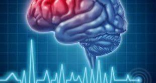 پیشگیری از سکته مغزی