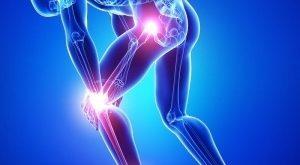 درمان طبیعی درد مفاصل-آرتریت