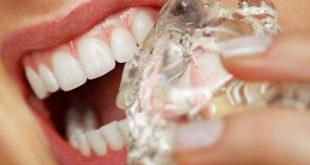 عاداتی که به دندان آسیب می زنند