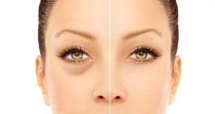 درمان طبیعی پف چشم